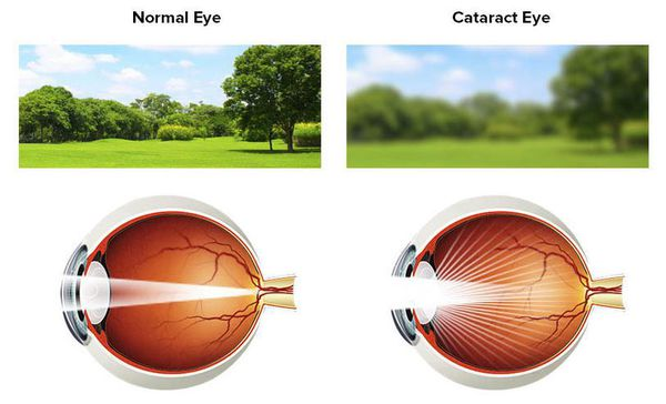 Размытость восприятия при катаракте