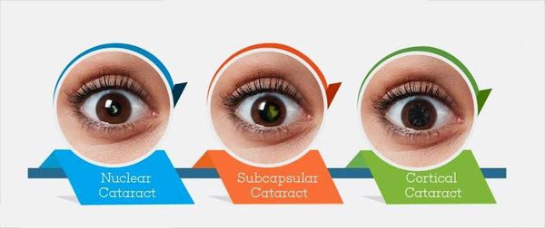 Типы катаракты по локализации