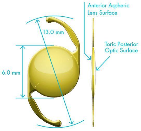 Торическая интраокулярная линза Alcon AcrySof IQ Toric