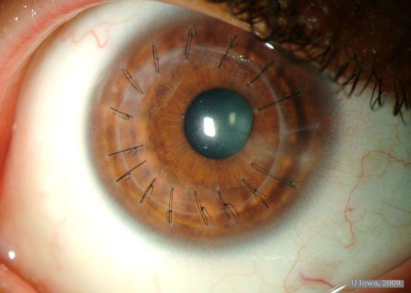 Глаз после пересадки роговицы
