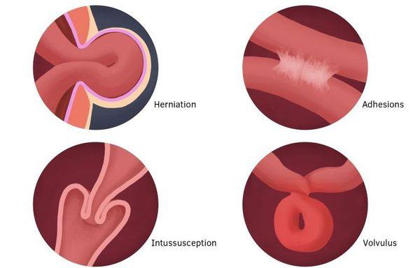 Виды острой кишечной непроходимости