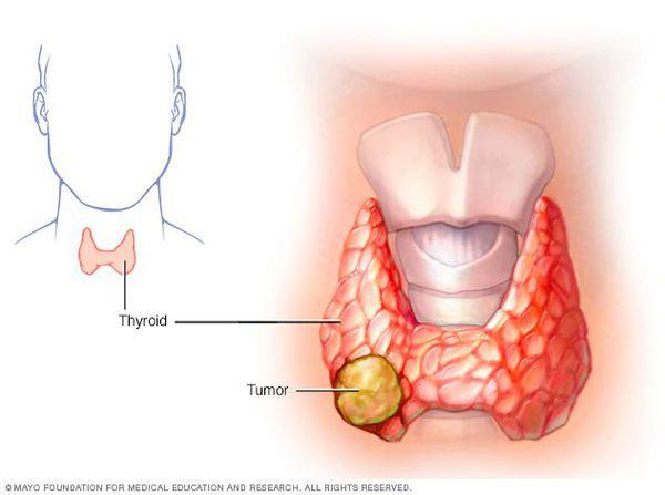 Опухолевый узел щитовидной железы