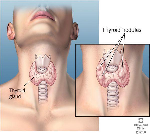 Варианты локализации кист щитовидной железы