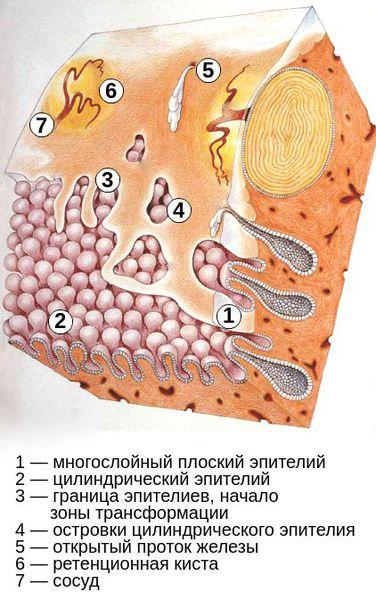 Процесс метаплазии и образования кист