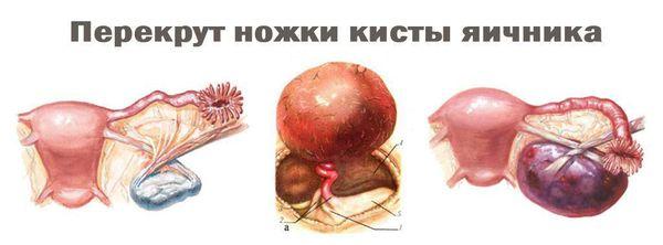 Перекрут ножки кисты яичника