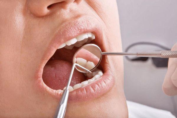 Зондирование зубов