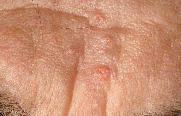 Гиперплазия сальных желёз