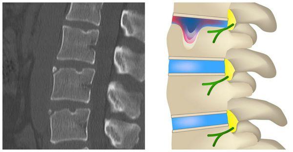 Грыжа Шморля и компрессионный перелом позвоночника