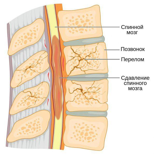 Отломки, сдавливающие спинной мозг