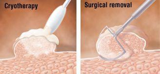 Криодеструкция аногенитальной бородавки и её удаление скальпелем