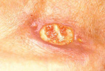 Нагноение и воспаление аногенитальной бородавки