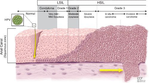 Проникновение ВПЧ в эпителий