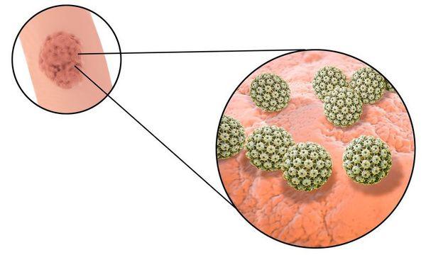 Вирус папилломы человека на коже