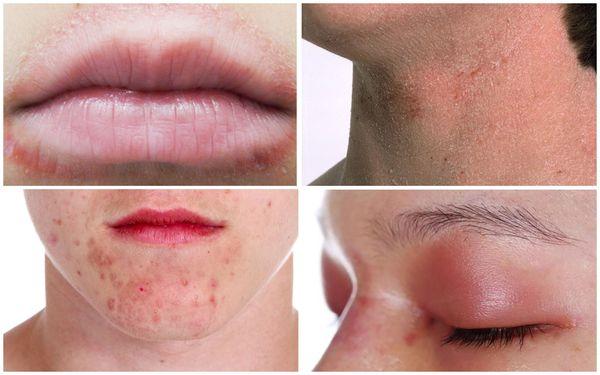 Дерматит лица, губ, век, шеи