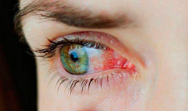 Покраснение глаза при конъюнктивите