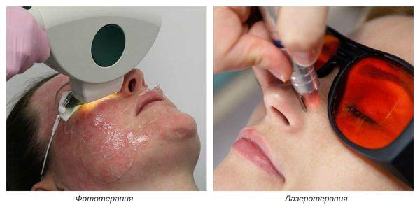 Фото- и лазеротерапия