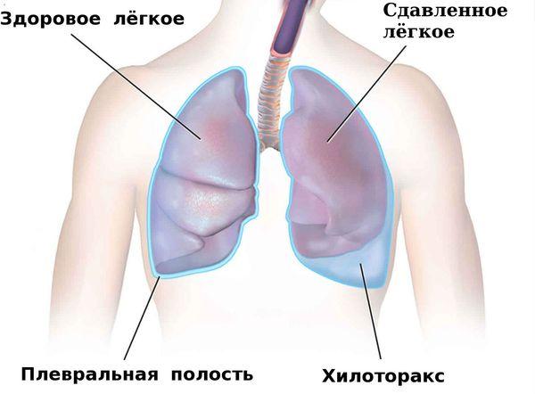 Хилоторакс