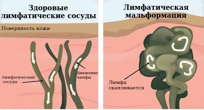 Здоровые лимфатические сосуды и лимфатическая мальформация