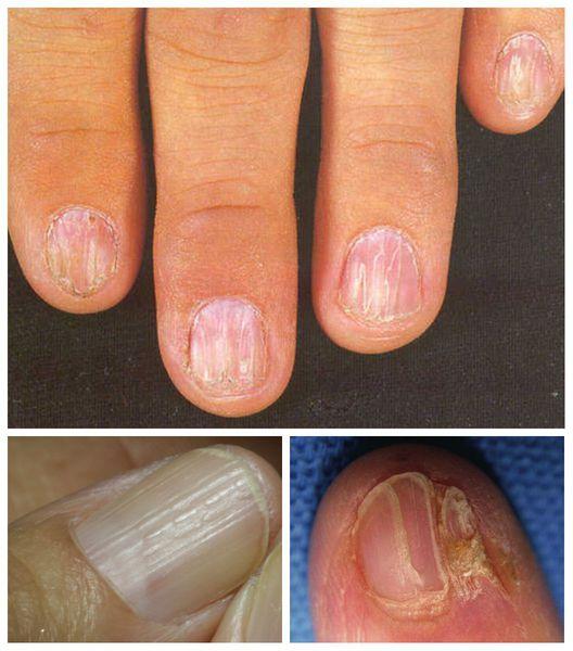 Ногти, поражённые красным плоским лишаём