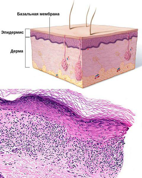 Скопление инфильтрата в области базального слоя