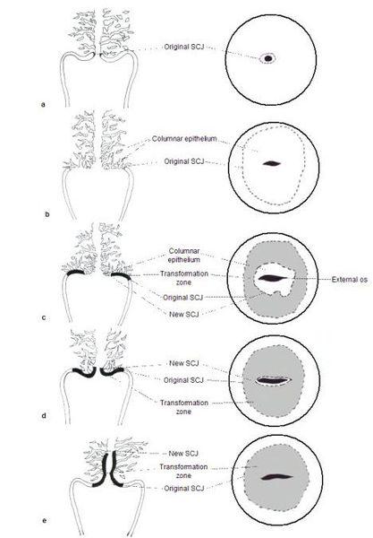 Гистологические изменения при лейкоплакии