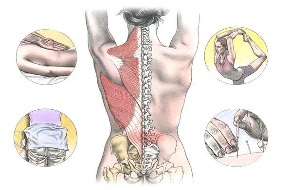 Варианты лечения боли в спине