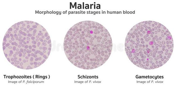 Классификация малярии