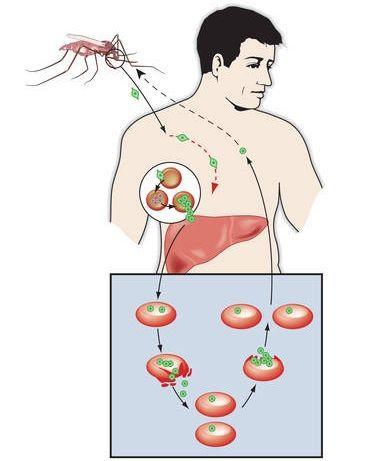 Механизм возникновения малярии
