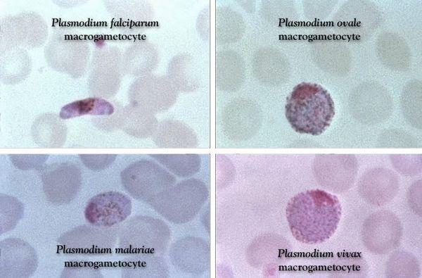 Виды плазмодия в крови