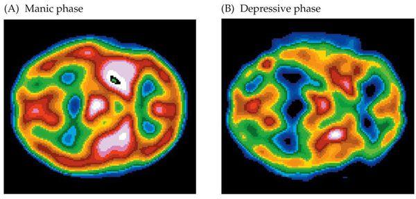 Мозговая активность при маниакальной и депрессивной фазе биполярного расстройства