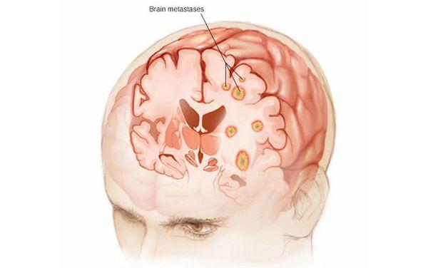 Метастазы в мозге