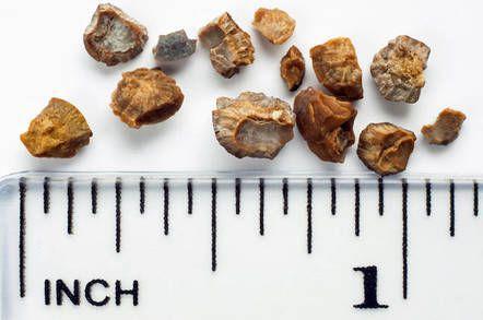 Удалённые камни