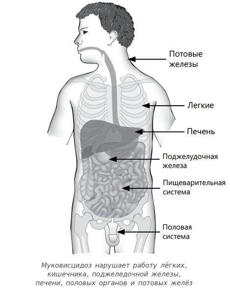 Нарушения в организме при муковисцидозе