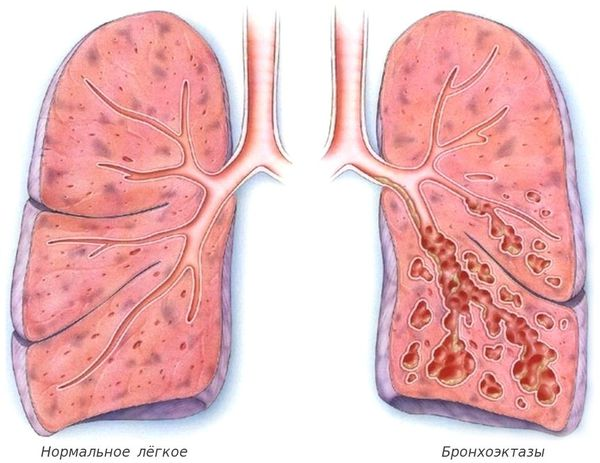 Нормальное лёгкое и бронхоэктазы