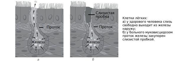 Закупорка протока железы