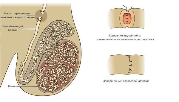 Вазовазоанастомоз