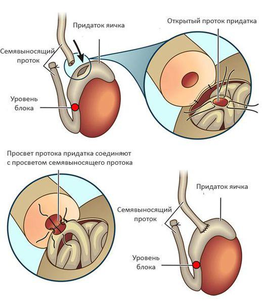 Операция при низкой скорости сперматозоидов
