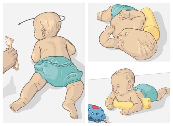 Лечение малыша с кривошеей