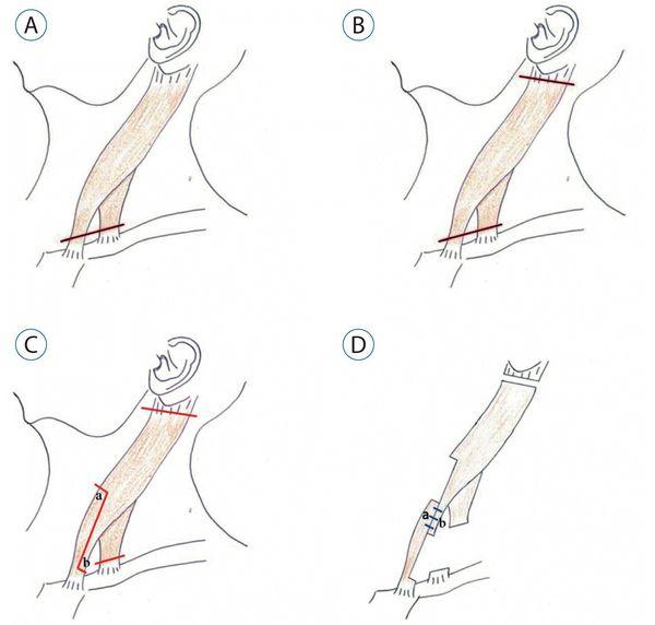 Оперативное лечение мышечной кривошеи