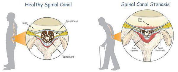 Стеноз позвоночного канала