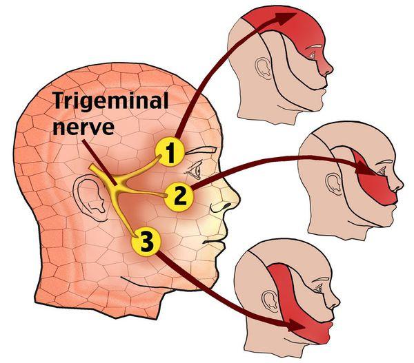 Области боли при поражении тройничного нерва