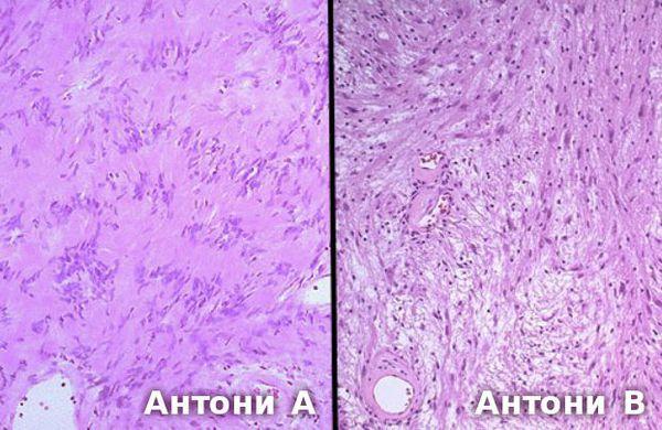 Гистологический препарат: слева тип Антони А, справа тип Антони В
