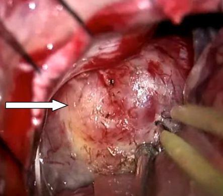 Интраоперационная фотография. Макроскопический вид невриномы слухового нерва (белая стрелка)