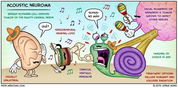 Механизм развития невриномы слухового нерва