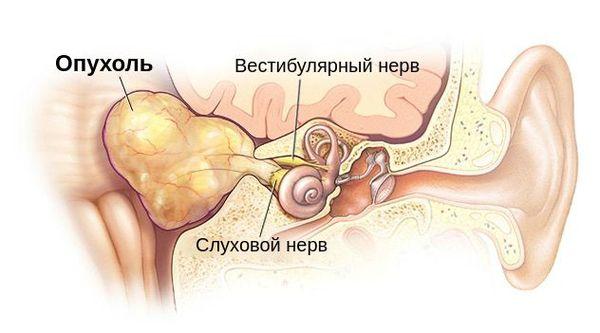 Опухоль, давящая на слуховой и вестибулярный нерв