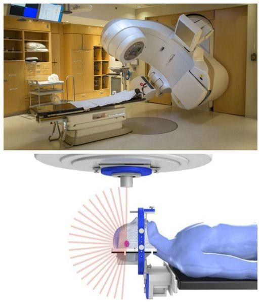 Радиотерапия невриномы