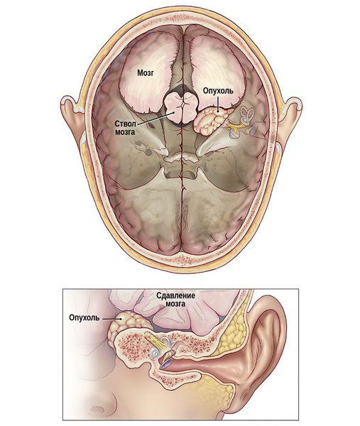 Рост опухоли в сторону мозга