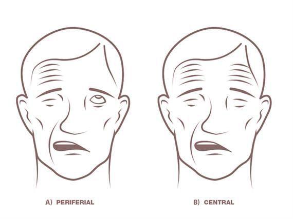 Центральный и периферический паралич