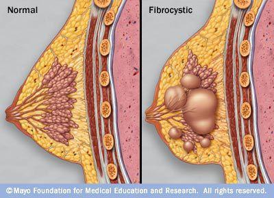 Опухоль молочной железы