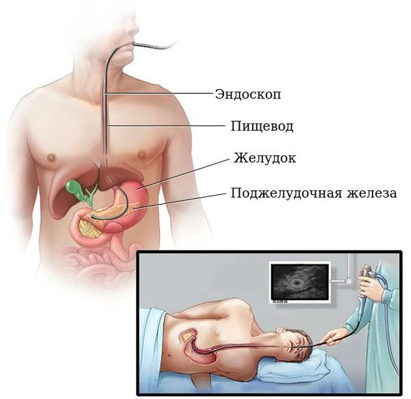 Эндосонография